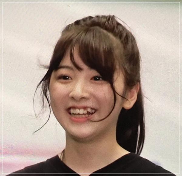 ミイヒ八重歯1
