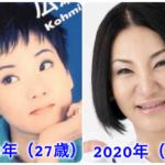 【画像】広瀬香美は整形で目が変に?顔の変化を徹底比較(昔〜現在)!