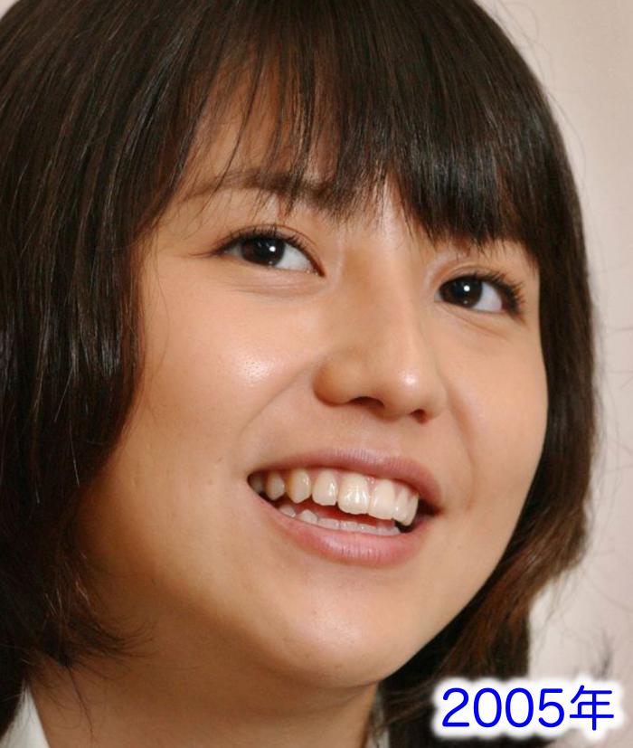 長澤まさみ鼻2005