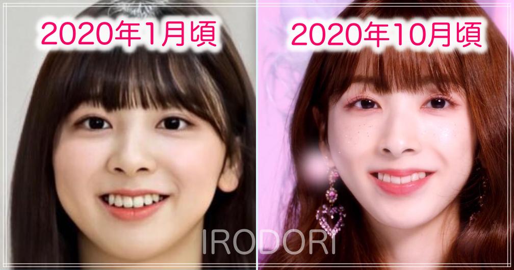 ミイヒ顔の変化(2020年1月→10月)