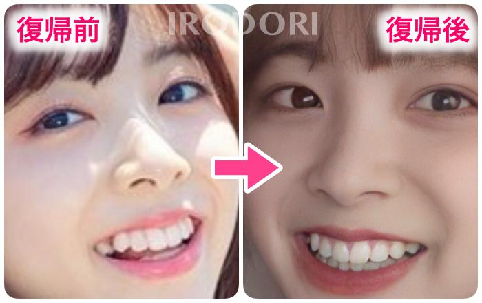 ミイヒ復帰前後の歯を比較