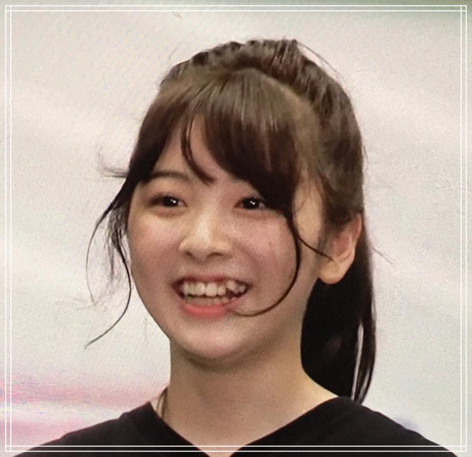 ミイヒ歯科矯正前の歯の色