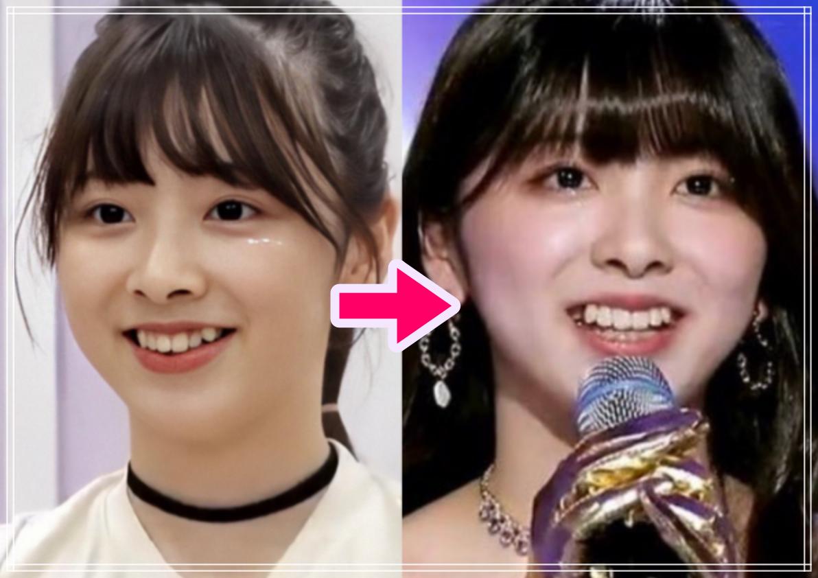 ミイヒ歯科矯正前後の比較画像