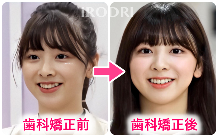 歯科矯正前後のミイヒを比較